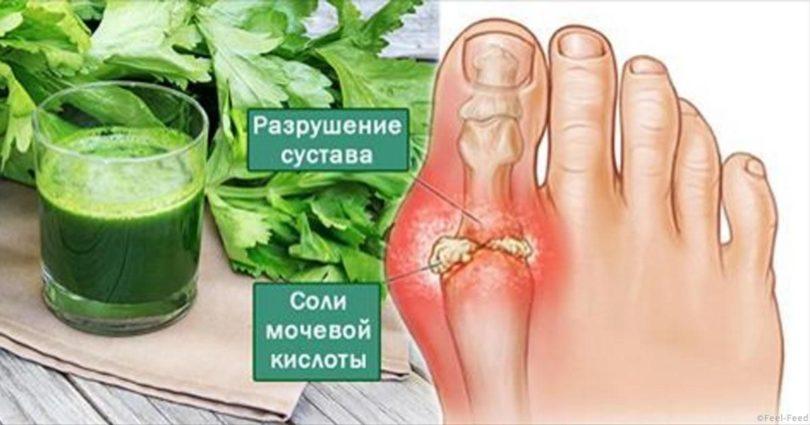 Боль в суставах, боль, косточка на ноге